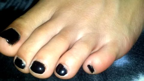 Macro closeup of amateur's black toenails