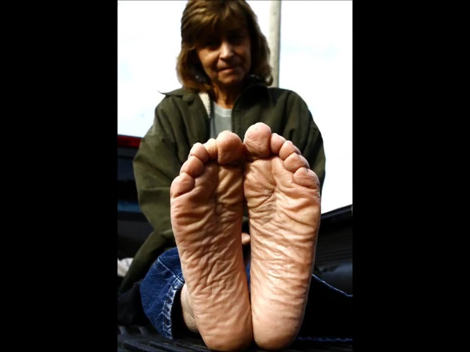 Black Women Ugly Feet